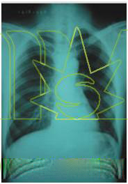 diagnostic x ray machine image