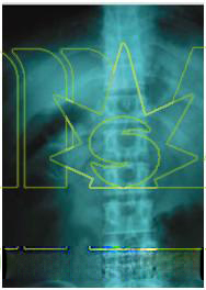 diagnostic x ray machine photo