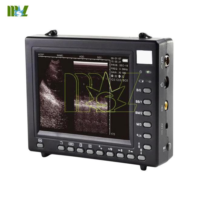 palmsize ultrasound scanner