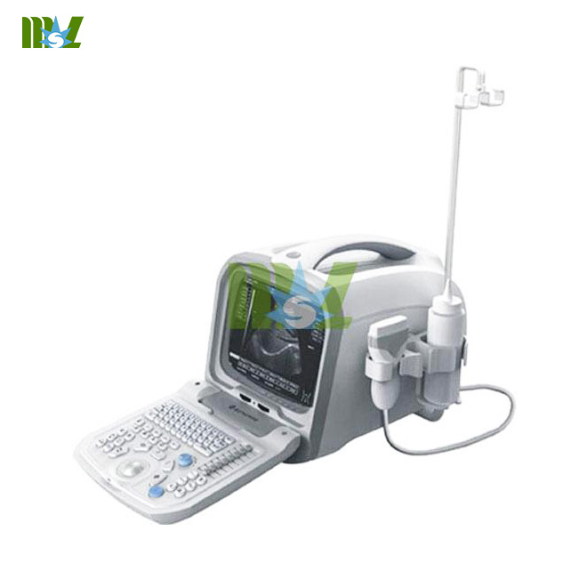cheap portable ultrasound machine