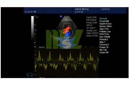 color doppler for cardiac
