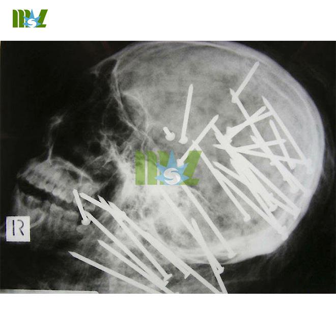 MSLMF01-8