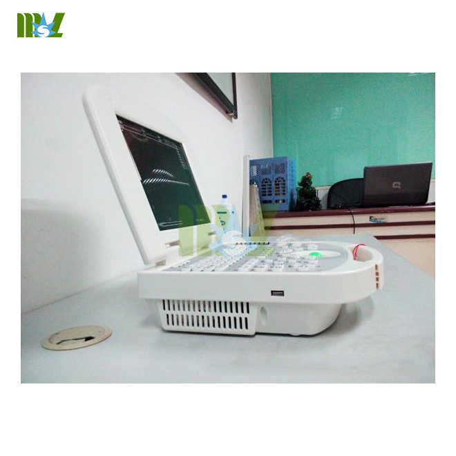 cheap portable ultrasound machine MSLPU28