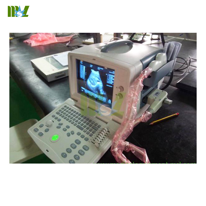 full digital ultrasound diagnostic system MSLPU30