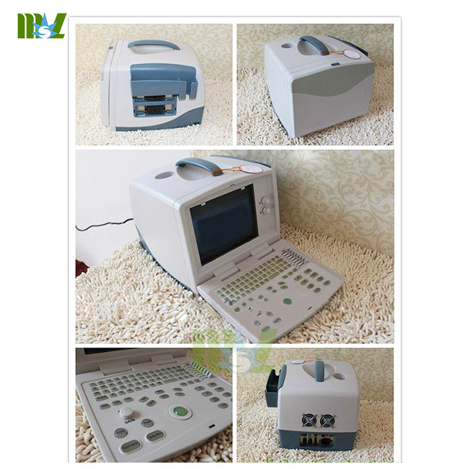 PC based 3D full digital laptop ultrasound MSLPU30