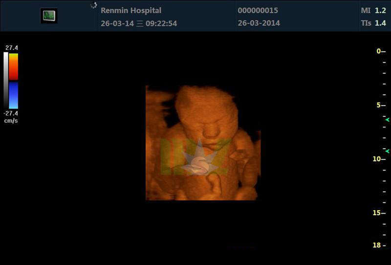 MSL 4D Color Doppler Ultrasound Machine Effect pictures
