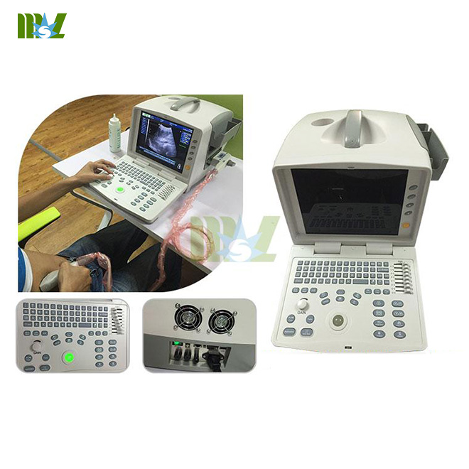 digital laptop ultrasound MSLPU30