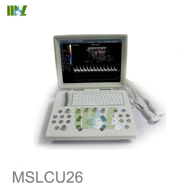 Laptop Color Doppler Ultrasound Machine