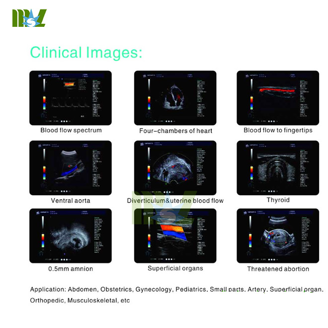 portable 3d/4d ultrasound diagnostic imaging system