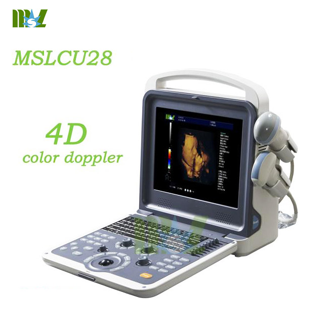 Portable 4d color doppler ultrasound diagnostic imaging MSLCU28