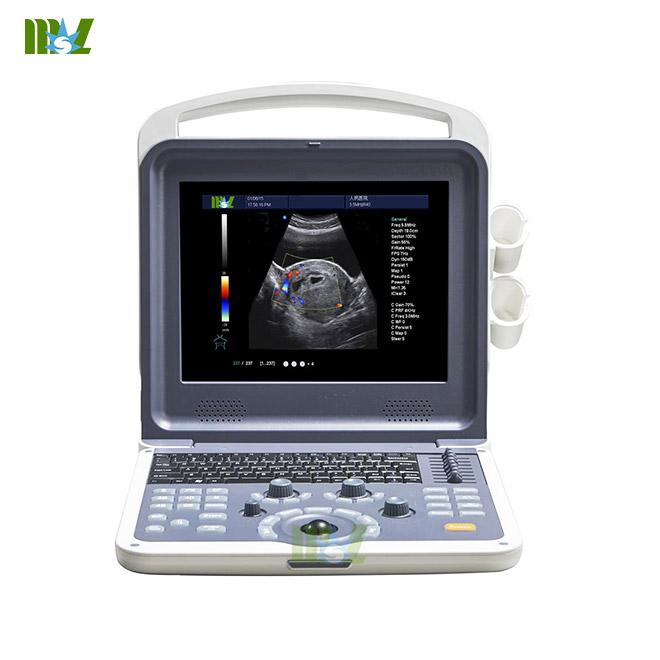 4d color doppler ultrasound diagnosis system MSLCU28 screen