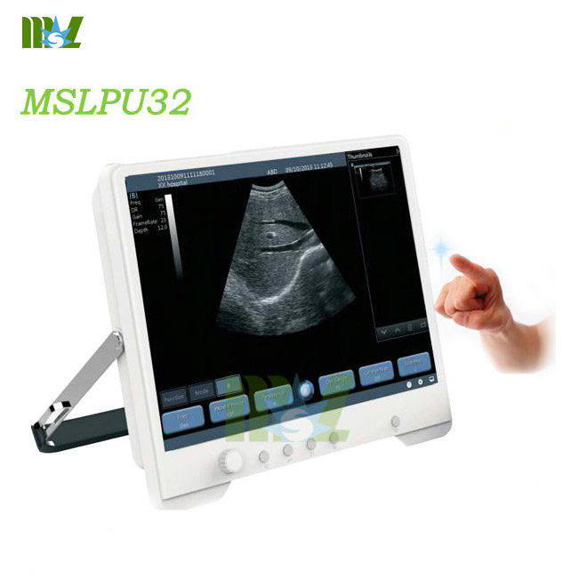 Touch-screen digital ultrasound MSLPU32for sale