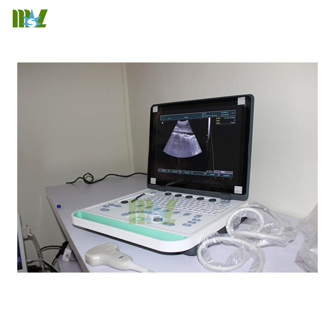 cheap 3d laptop ultrasound machine MSLPU34 for sale