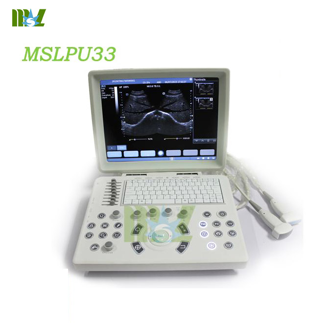 New use laptop as ultrasound machine MSLPU33 for sale