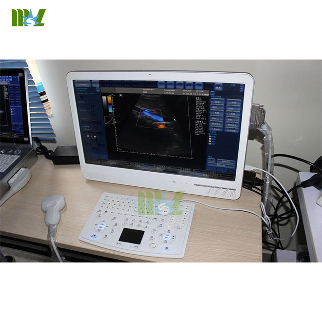 Newest touch screen laptop ultrasound machine MSLCU29 for sale