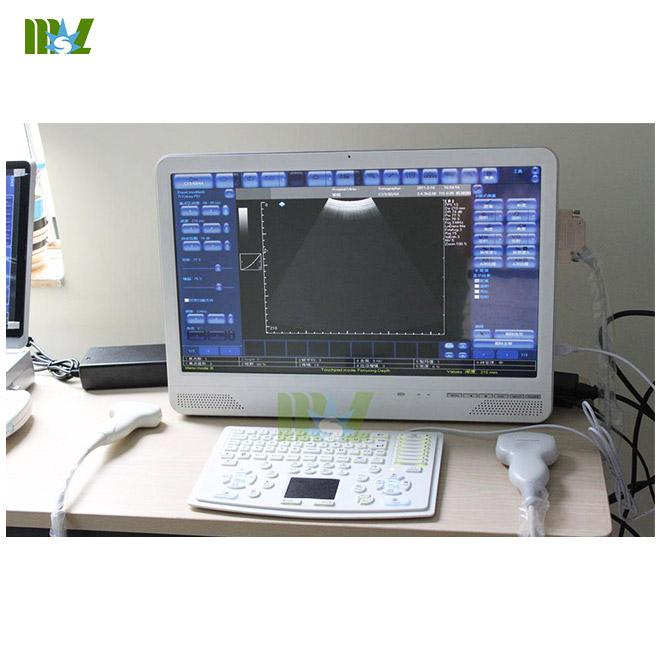 touch screen laptop ultrasound machine MSLCU29
