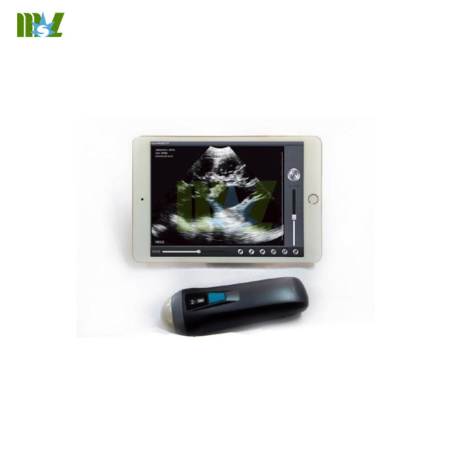 wireless ultrasound probe MSLPU36 working with iphoneipad