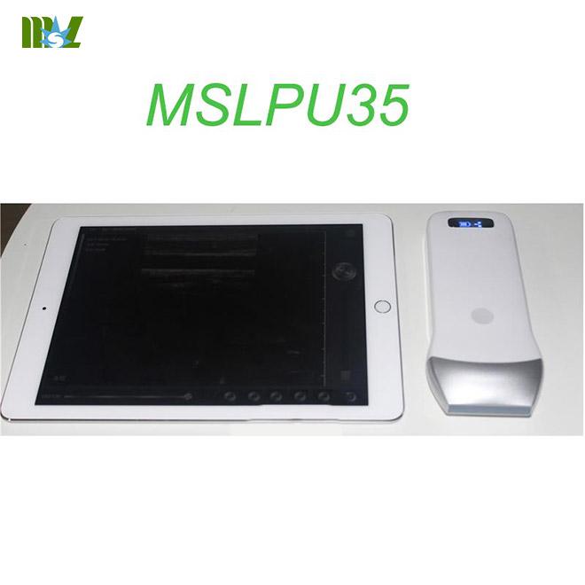 MSL wireless ultrasound Scan linear Probe MSLPU35