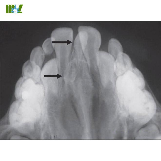 MSL x ray sensor MSLSN01