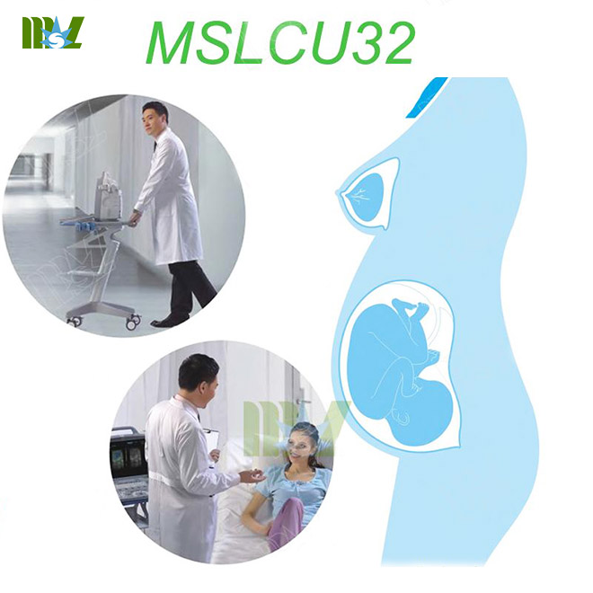 MSL Touch Digital Mobile Color Doppler ultrasound MSLCU32 for sale