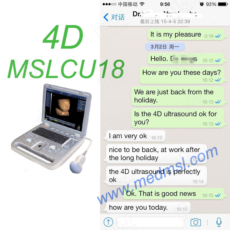 3D&4D ultrasound machine in China-MSLCU18 Praises From Clients