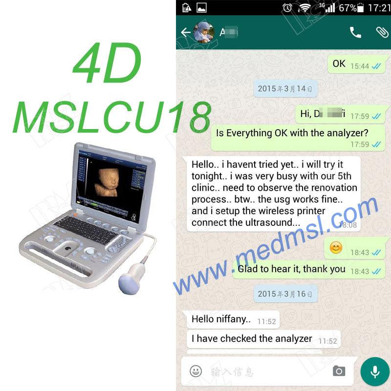 portable 3D&4D ultrasound machine in China-MSLCU18 Praises From Clients