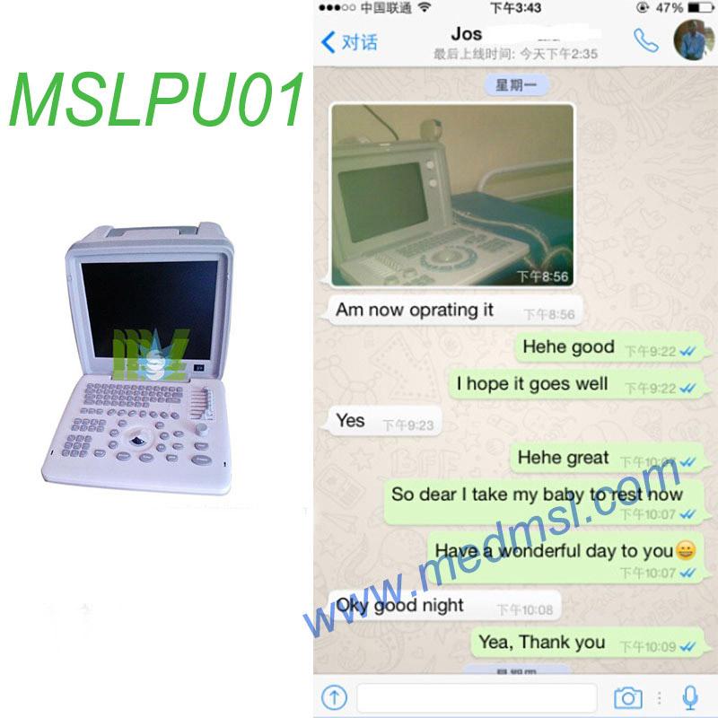 Portable ultrasound machine MSLPU01 Praises From Clients