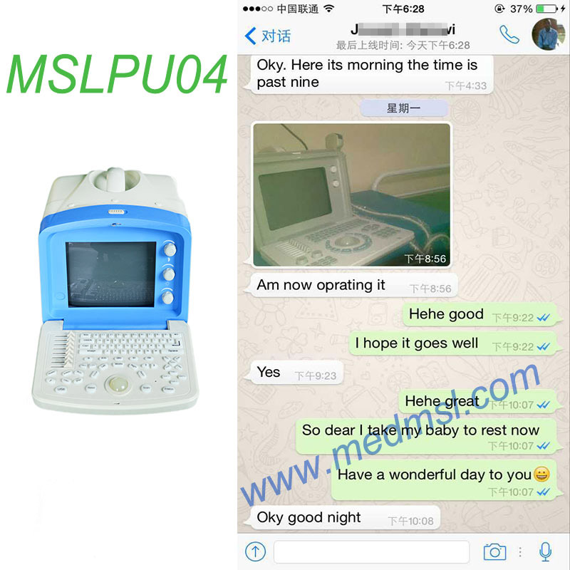 Portable ultrasound for sale MSLPU04 Praises From Clients