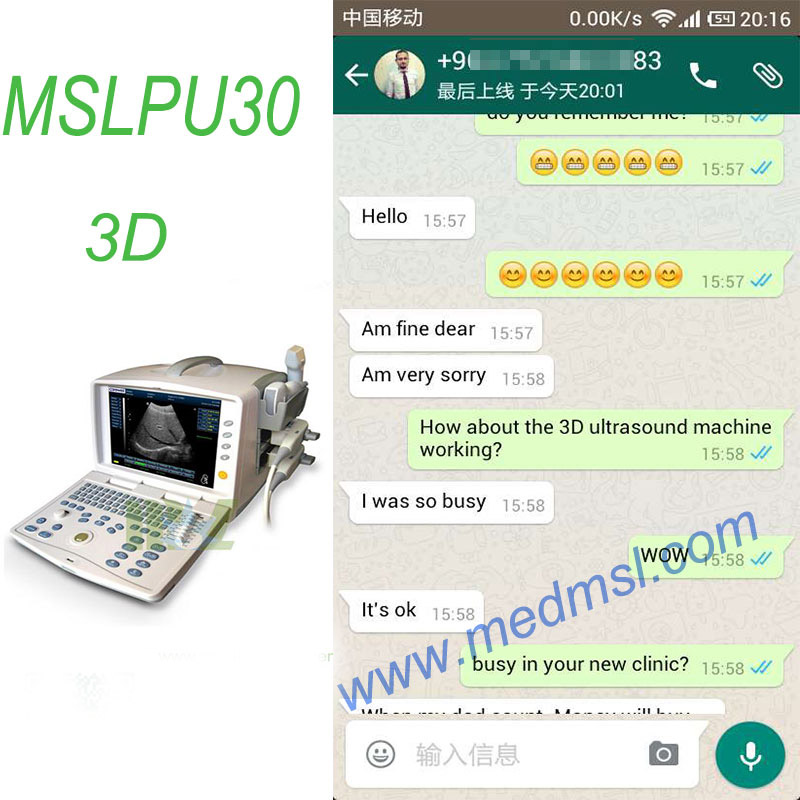 digital laptop ultrasound MSLPU30 Praises From Clients