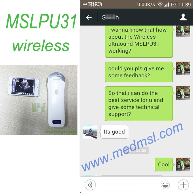 The India customer feedback of MSLPU31