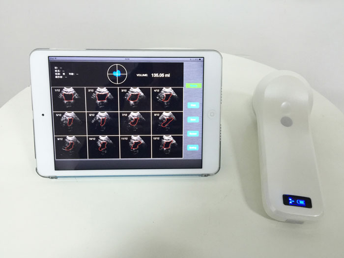 4D Wireless Probe Bladder Ultrasound Scanner MSLPU37