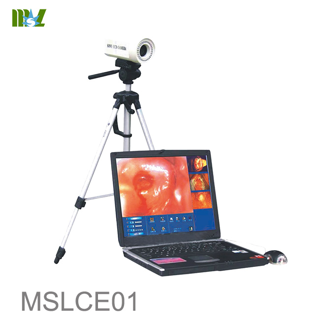 Laptop Colposcope MSLCE01