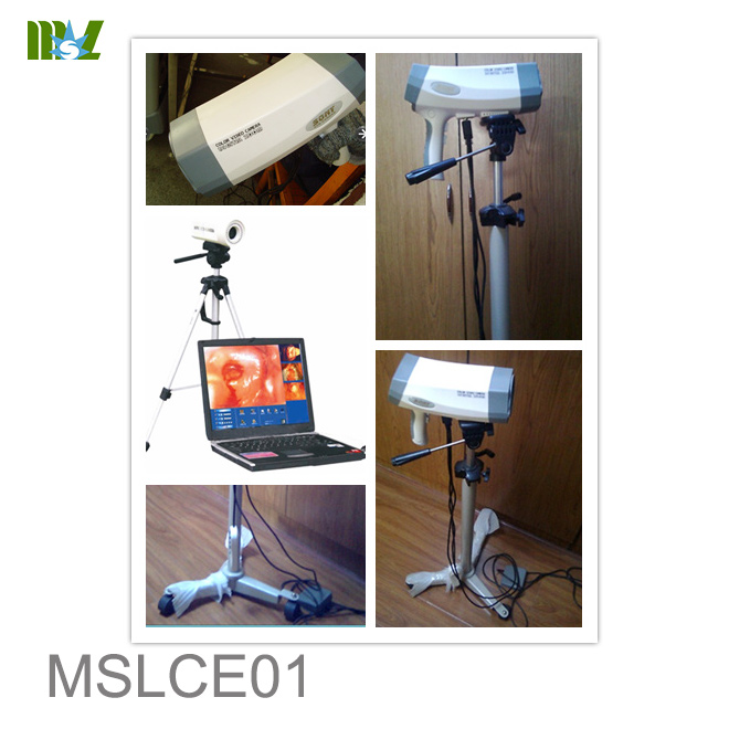Laptop Colposcope for Women Use MSLCE01