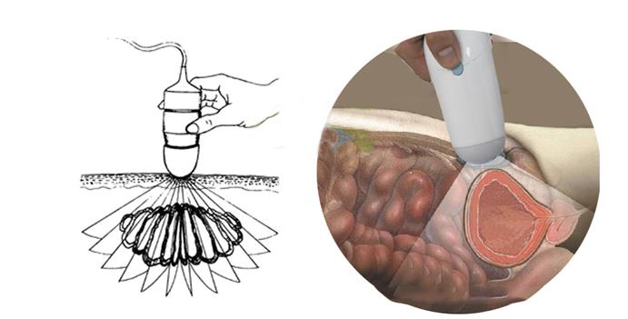 BladderScan / ultrasound bladder scanner