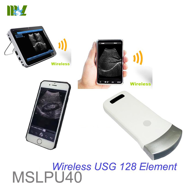 128 Element WIFI ultrasound