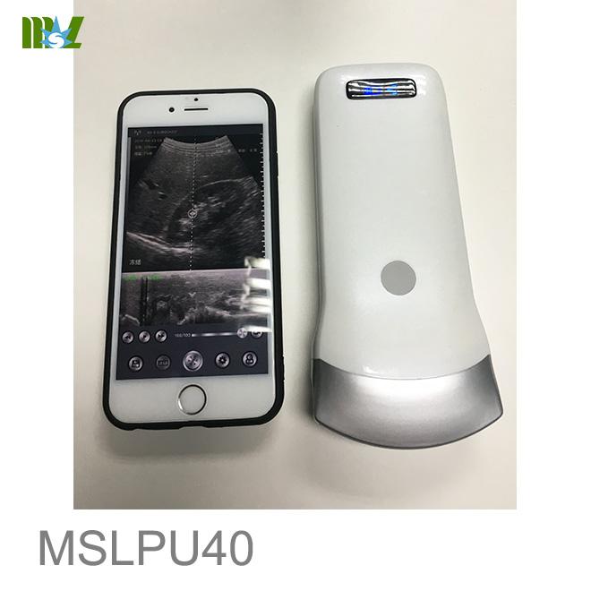 Wireless USG 128 Element Ultrasound Convex Probe