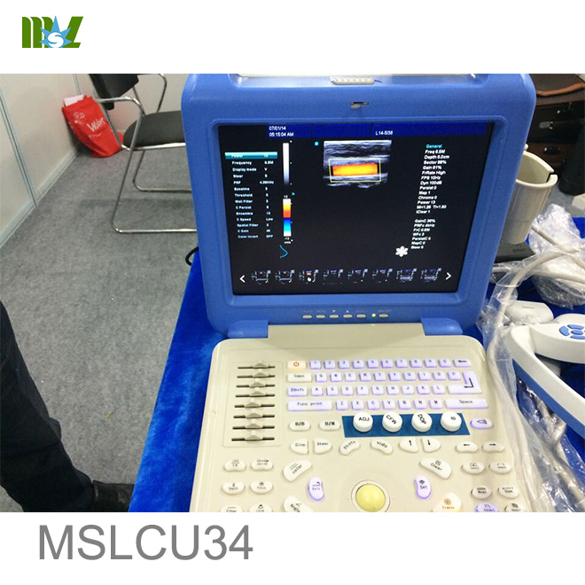 best Ultrasound Scanner MSLCU34