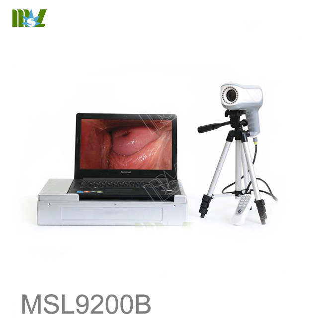MSL Digital Electronic Colposcope MSL9100B