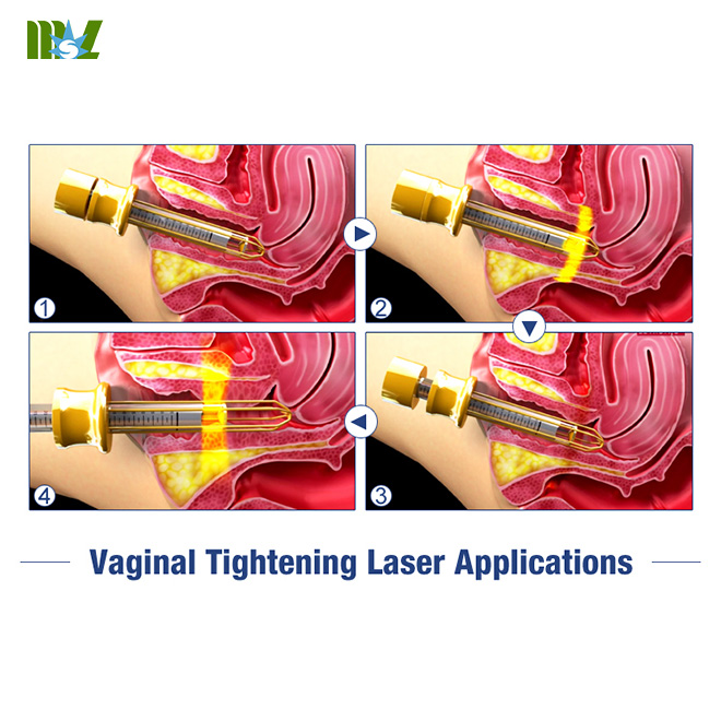 Advanced Laser Vaginal Tightening Machine MSLCF02