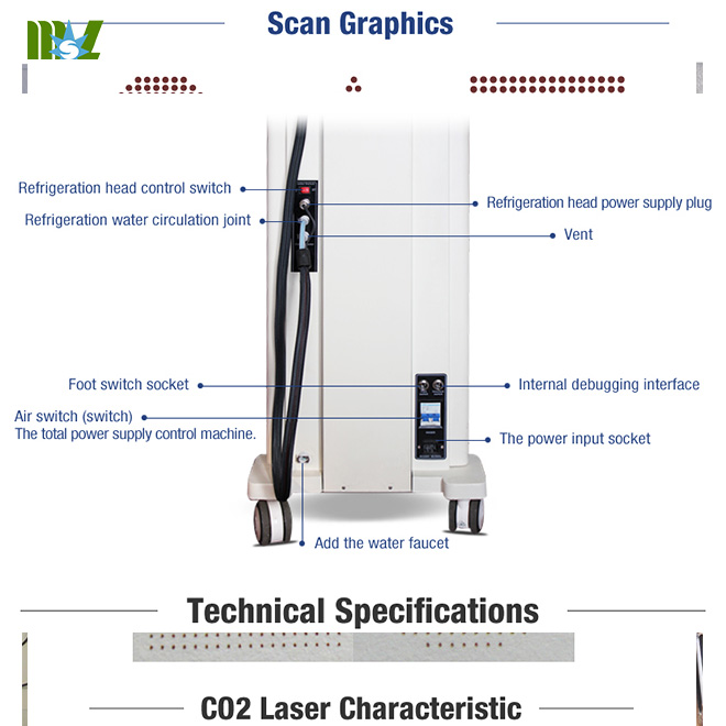 Advanced Laser Vaginal Tightening Machine MSLCF02 for sale