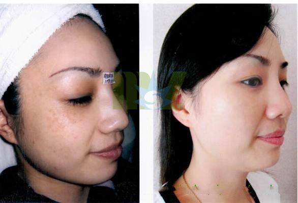 Cheap Permanent Hair Removal MSLOP01 for sale