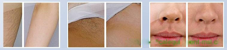 MSL Permanent Hair Removal MSLOP01 for sale