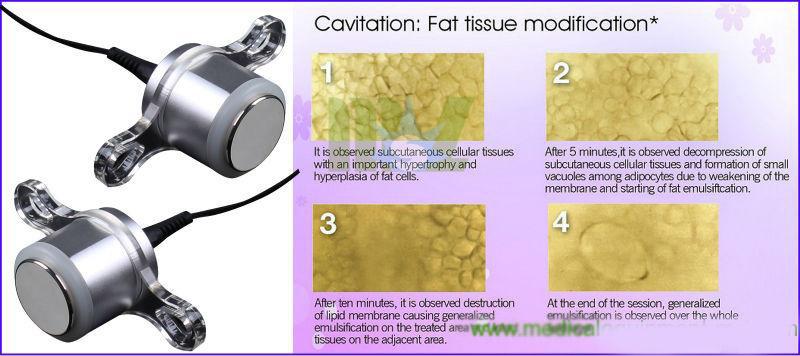 Portable Slimming system roller velashape machine MSLVS02 for sale