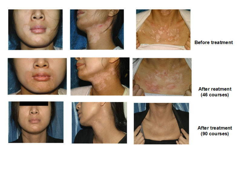 Advanced Home use Psoriasis MSLKN03