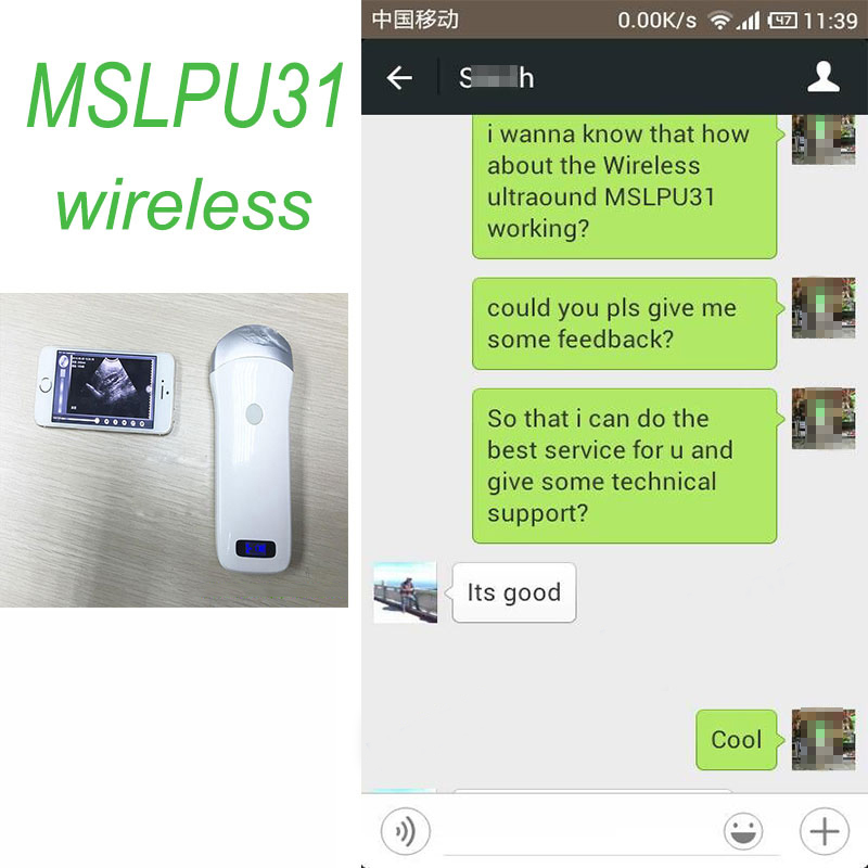 The India customer feedback of MSLPU31 for sale