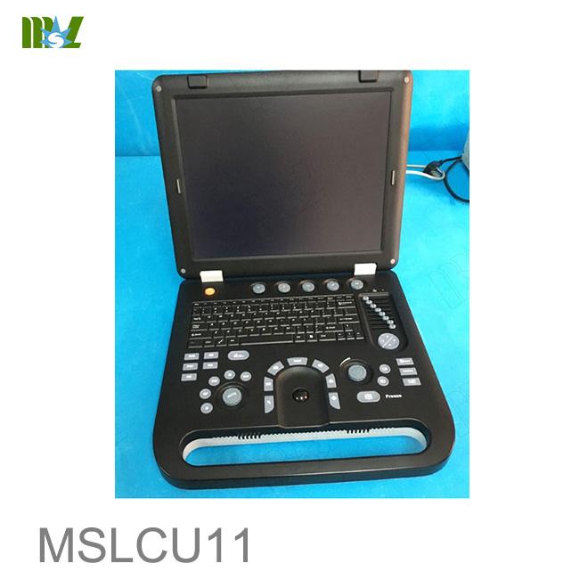 3d color ultrasound