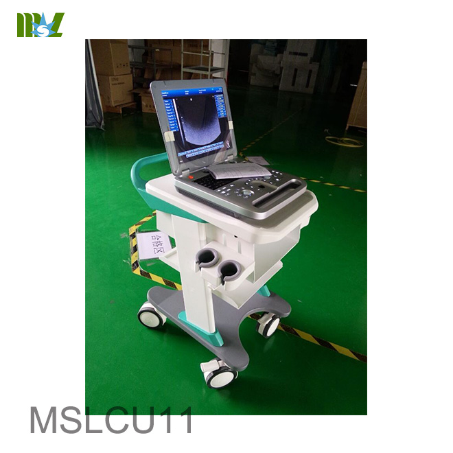 3d doppler color ultrasound