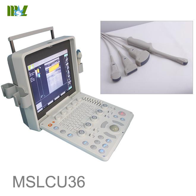 abdominal ultrasound MSLCU36
