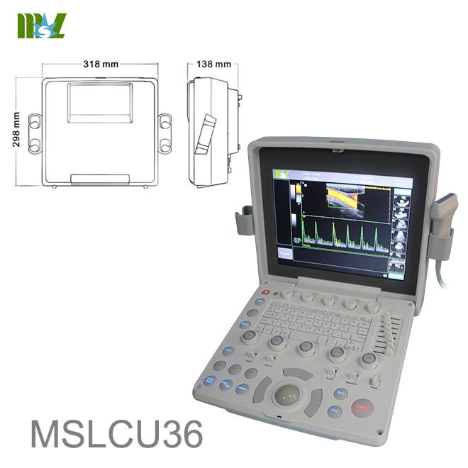 Colour doppler ultrasound in pregnancy