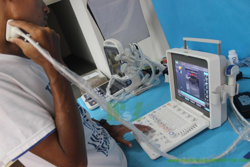 Colour doppler ultrasound